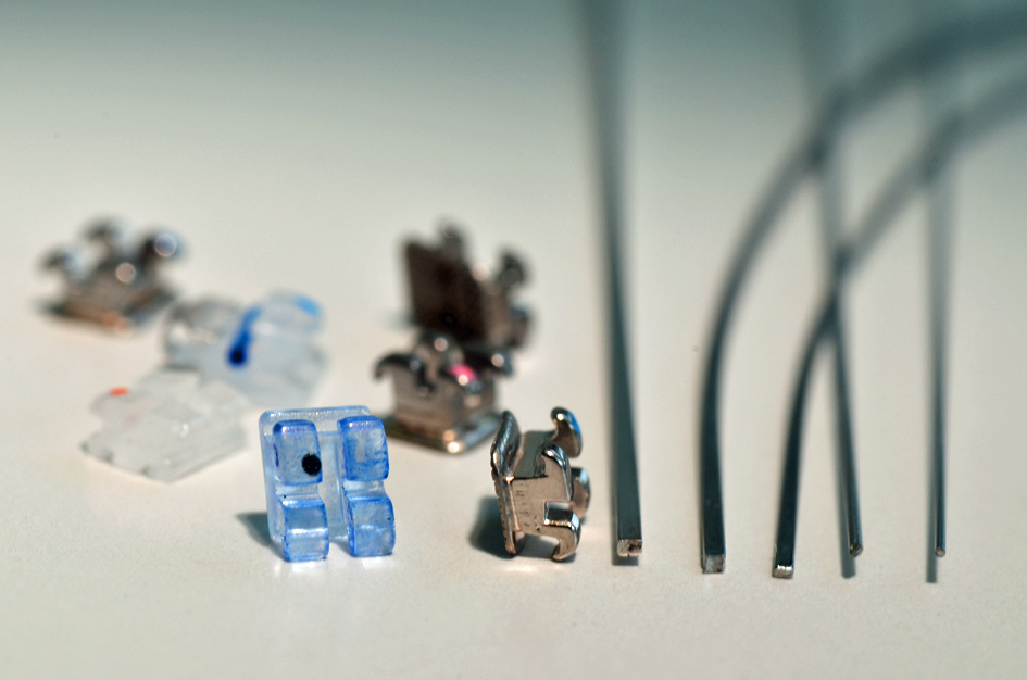 http://www.makoto-ortho.com/blog/brackets%20and%20wires.jpg